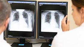 Zwei Menschen im weißen Kittel betrachten Röntgenbilder des Brustkorbs.